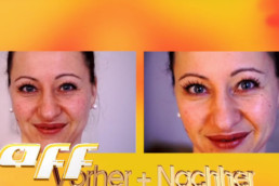 taff Episode: Tinas Gesichtsbehandlungen haben es in sich!
