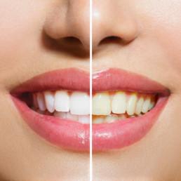 Kosmetisches Zahnbleaching
